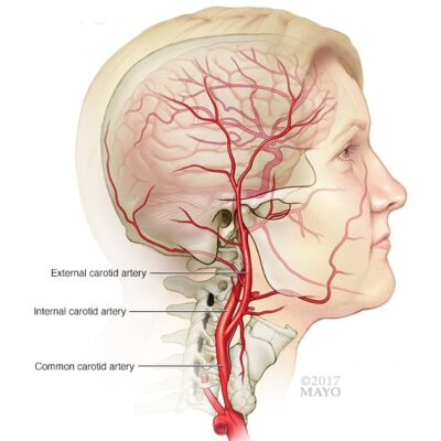 Carotid arteryOpen pop-up dialog box