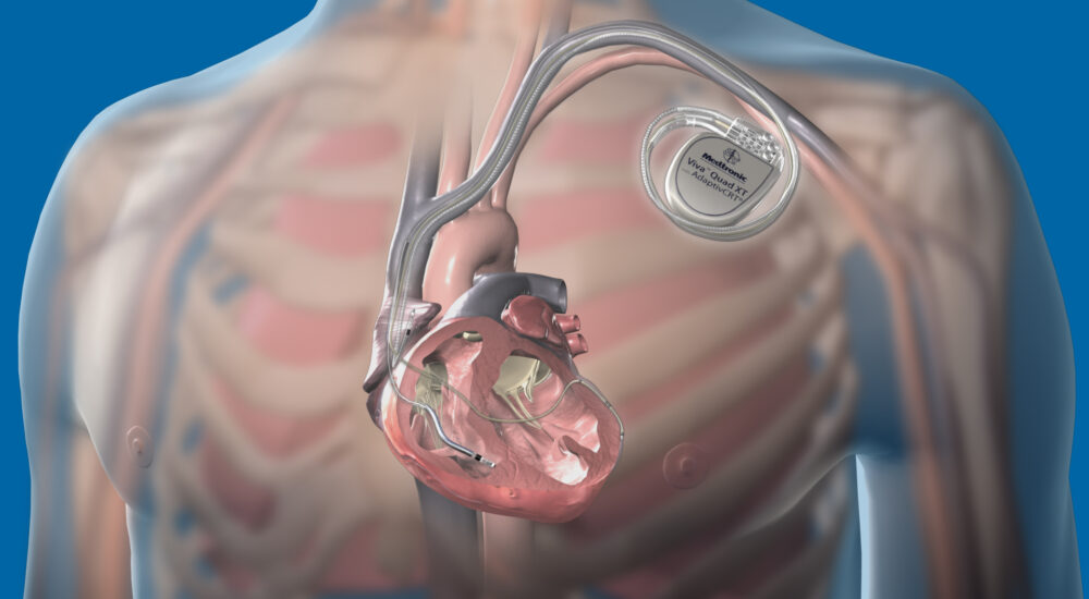 Cardiac_Devices